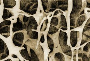 Osteoporotische Knochenstruktur